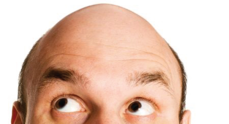 How To Go Bald With Confidence
